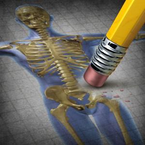 Arthrose Osteoporose