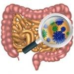 Durchfall, Blähungen, Bauchschmerzen, Verstopfungen & Verdauungsbeschwerden