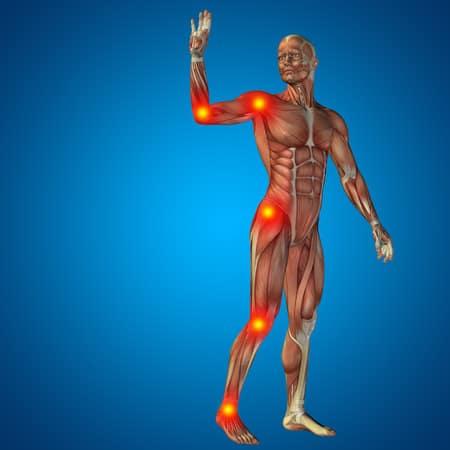 Fibromyalgie & Weichteilrheuma - ganzheitliche Ansätze, Therapie und Behandlung