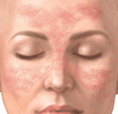 schmetterlingserythem bei systemischen lupus erythematodes