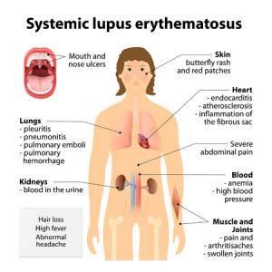 systemischer lupus erythematodes (SLE) und seine betroffenen Organstörungen & Beschwerden
