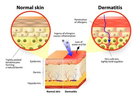 alternative Behandlung bei Neurodermitis, Schuppenflechte, atopischen Ekzem und Psoriasis