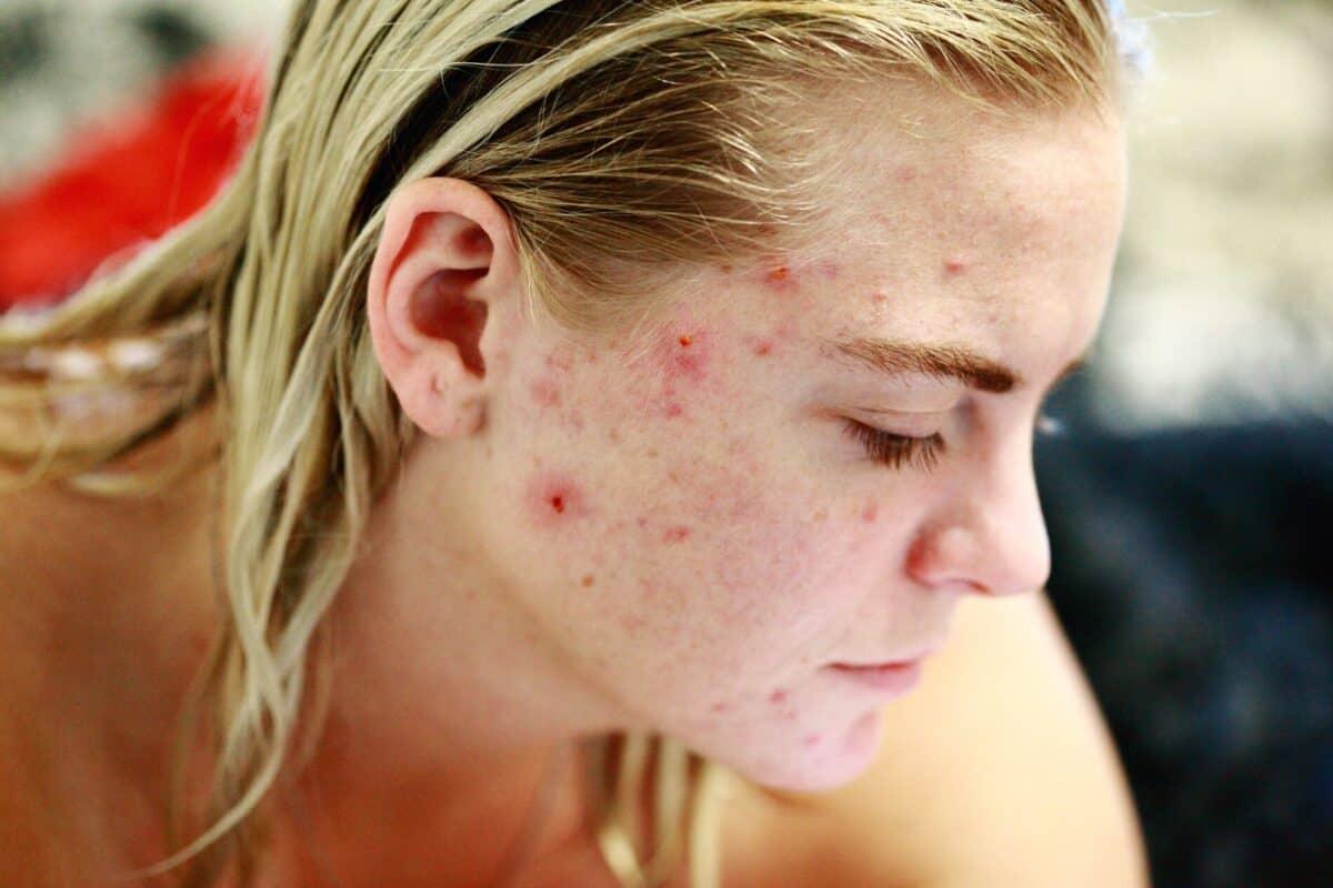 Akne Hautprobleme Darmgesundheit